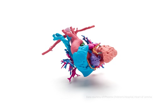 This full color model is a heart of a young girl named Jemma with a complex heart defect; the heart was printed using HP's new Jet Fusion 300 / 500 3D printer to help surgeons at Phoenix Children's Hospital prepare, select the best surgical path and explain the procedure to Jemma's family. Data courtesy of Phoenix Children's Hospital; Heart of Jemma